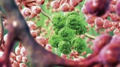Η ηλιοφάνεια «διώχνει» τον καρκίνο στο πάγκρεας