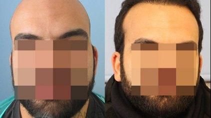 Μεταμόσχευση μαλλιών: Τα αποτελέσματα της εξελιγμένης τεχνικής