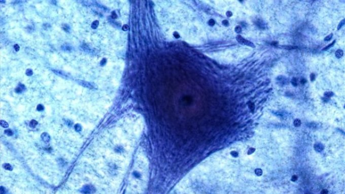 Ελπίδες για τη θεραπεία της σχιζοφρένειας και του αυτισμού