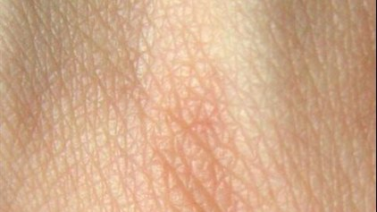 Το πρώτο καλλιεργημένο δέρμα με αγγεία