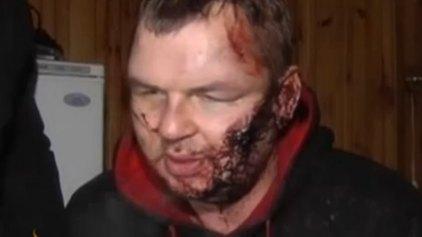 Σε κατ'οίκον περιορισμό ο διαδηλωτής που βασανίστηκε