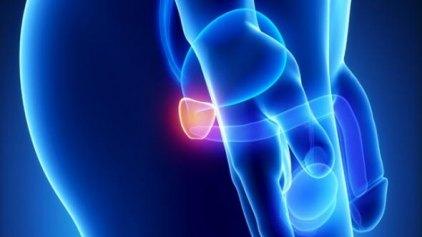 Φάρμακο για τον καρκίνο των ωοθηκών καταπολεμά τους όγκους του προστάτη