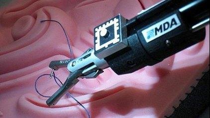 Παιδιατρικό χειρουργικό ρομπότ «από το Διάστημα»