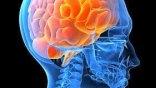 Εγκεφαλικές ανωμαλίες όσοι πάσχουν από χρόνια κόπωση