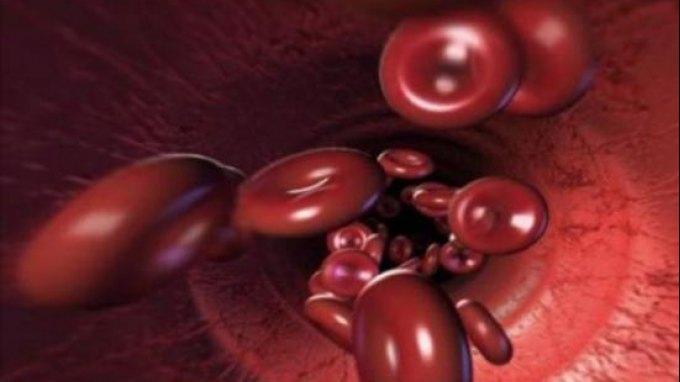 Τα βλαστοκύτταρα μπορεί να σταματούν την σκλήρυνση κατά πλάκας