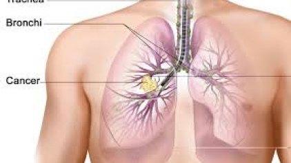 Περισσότεροι αναμένονται οι θάνατοι από καρκίνο των πνευμόνων