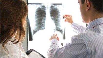 Περισσότερες γυναίκες θα πεθαίνουν από καρκίνο των πνευμόνων
