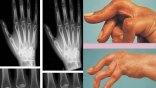 Πώς αντιμετωπίζεται η ρευματοειδής αρθρίτιδα