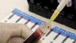 Πρωτοποριακό τεστ αίματος προβλέπει την επανεμφάνιση του καρκίνου του μαστού
