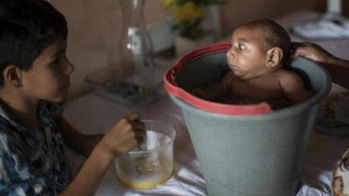 Σύσταση της Βραζιλίας στις εγκύους να μην πάνε στους Ολυμπιακούς