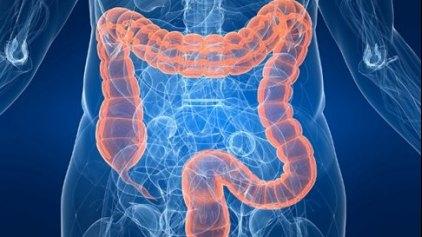 Πρωτεΐνη καθορίζει τη βέλτιστη θεραπεία για τον καρκίνο παχέος εντέρου