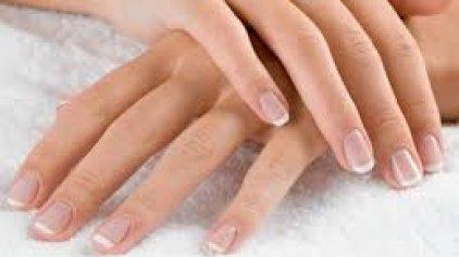 Σε ανησυχούν τα λευκά σημάδια στα νύχια σου;