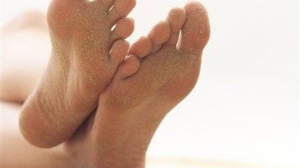 Σχεδόν 200 διαφορετικά είδη μυκήτων ζουν στα πόδια μας