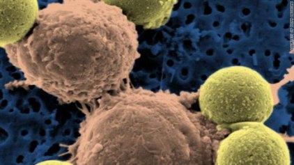 Αποτελεσματικές οι νέες θεραπείες της λευχαιμίας και των λεμφωμάτων